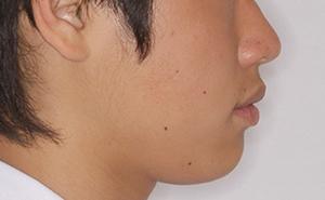 本格的治療「空隙歯列」治療後