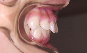本格的治療「空隙歯列」治療前