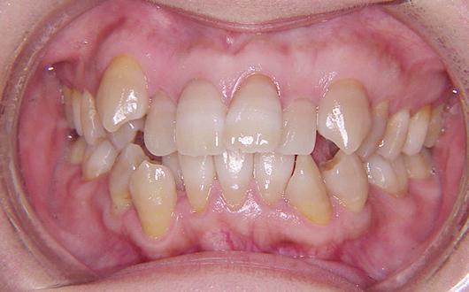叢生(乱ぐい歯):症例1の写真