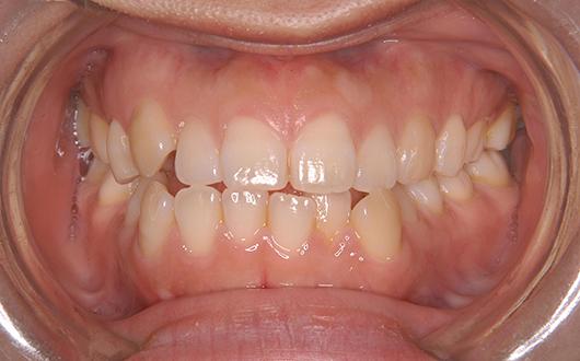 叢生(乱ぐい歯):症例2の写真