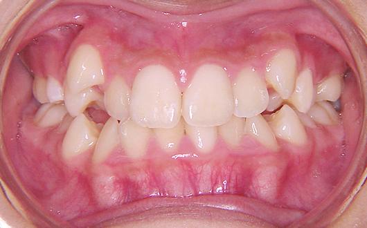 叢生(乱ぐい歯):症例3の写真