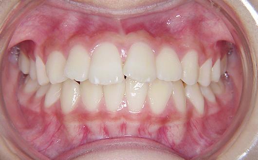 上顎前突(出っ歯):症例1の写真