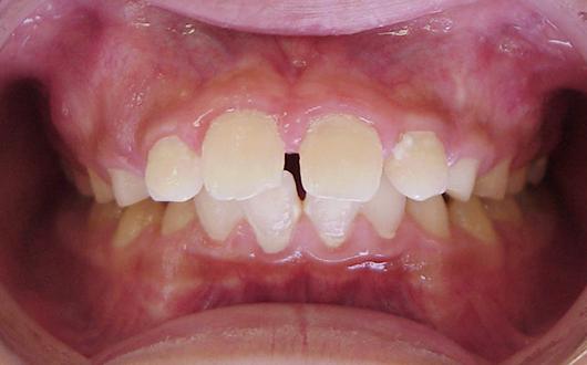 上顎前突(出っ歯):症例3の写真