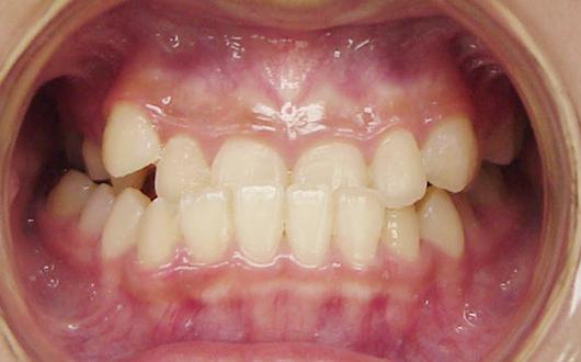 下顎前突(受け口):症例1の写真