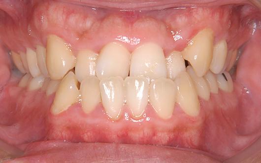 下顎前突(受け口):症例2の写真