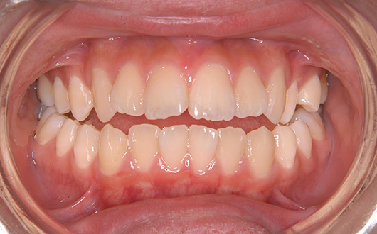 開咬:症例1の写真