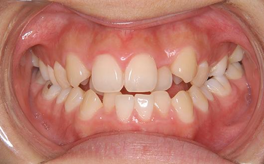 開咬:症例2の写真