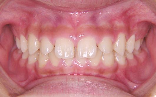 空隙歯列の写真