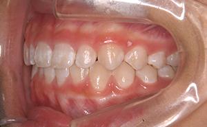 初期治療「出っ歯」治療後