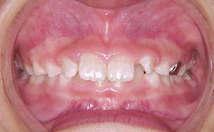 初期治療「出っ歯」治療前