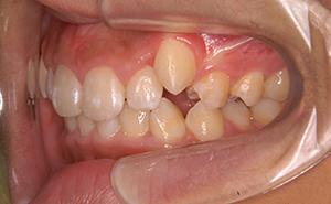 初期治療「かみ合わせが深く出っ歯」治療後