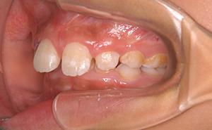 初期治療「かみ合わせが深く出っ歯」治療前