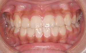 初期治療「前歯のガタガタ」治療後