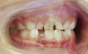初期治療「前歯のガタガタ」治療前