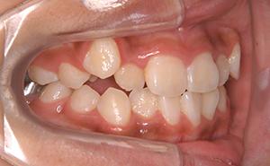 初期治療「前歯のガタガタ」治療中
