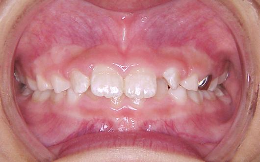 出っ歯の写真