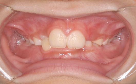 前歯のガタガタの写真