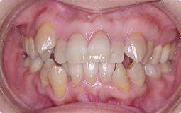 本格的治療「叢生(乱ぐい歯)」治療前
